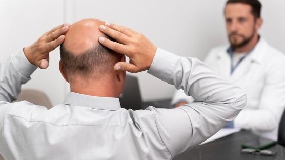 Saç Ekiminden Sonra Kepek Oluşması Normal mi? Ekilen Saç Her Gün Yıkanır Mı?